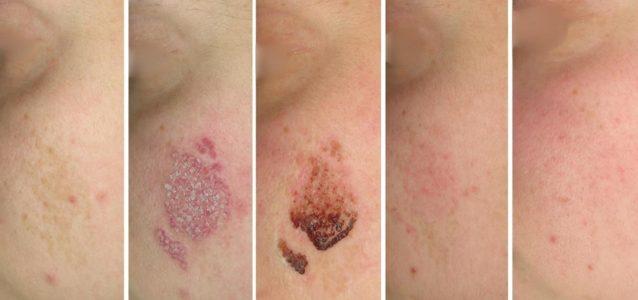 pigment lesions