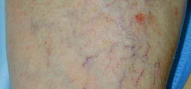 skin veins