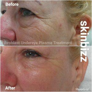 Fibroblast Skin Therapy | Skin Bizz | Sunshine Coast Skincare